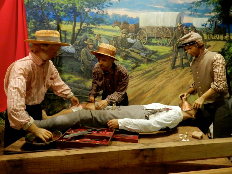 Field Surgery, National Museum of Civil War Medicine, Frederick MD